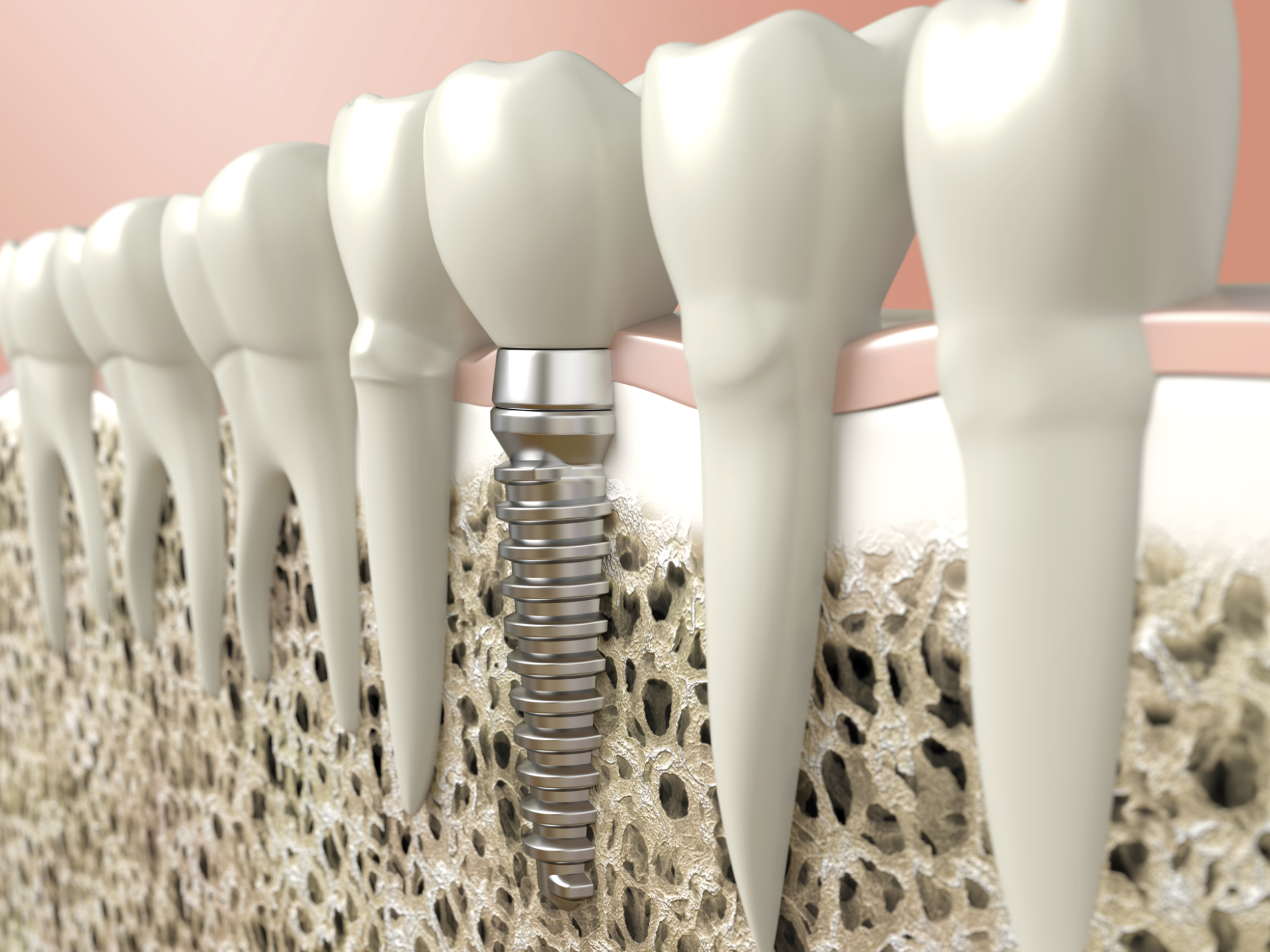 Dental Implants Archives Horsham Elements 3d Tooth Diagram Additionally Parts Of A Bridge For Teeth 480753457