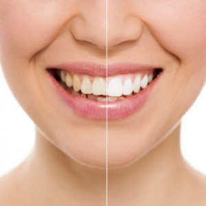 Teeth whitening trays are customized to fit perfectly