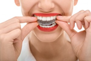 Your dentist in Horsham explains the benefits of Invisalign.
