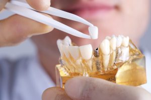 Your jawbone must be strong enough to anchor dental implants in Philadelphia.