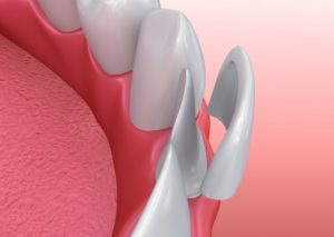 model of teeth showing porcelain veneers