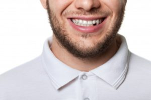 man smiling missing tooth